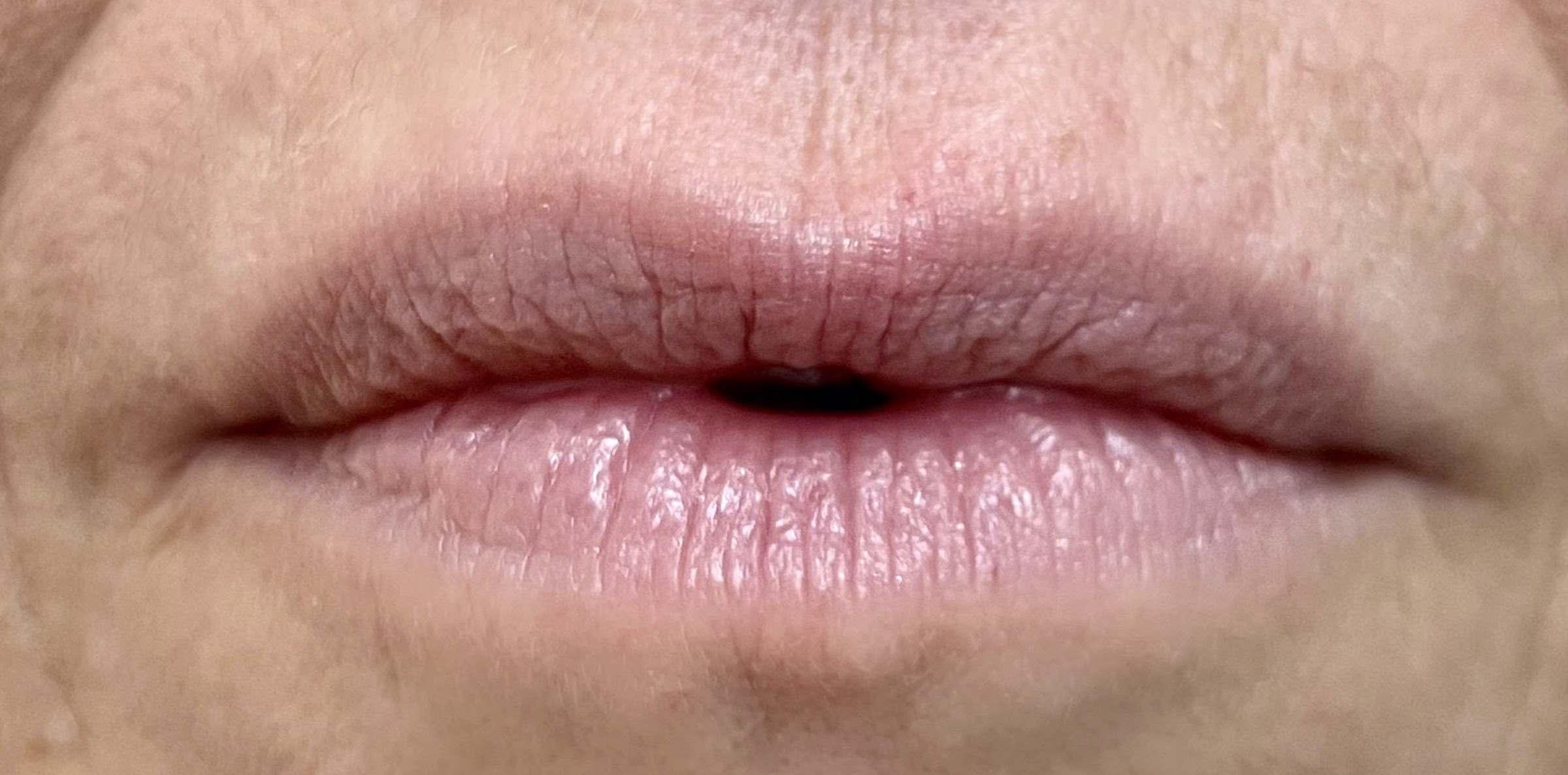 Lippen vor der Behandlung